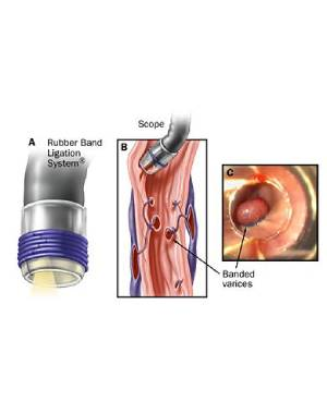 gastric disorders treatment in mumbai
